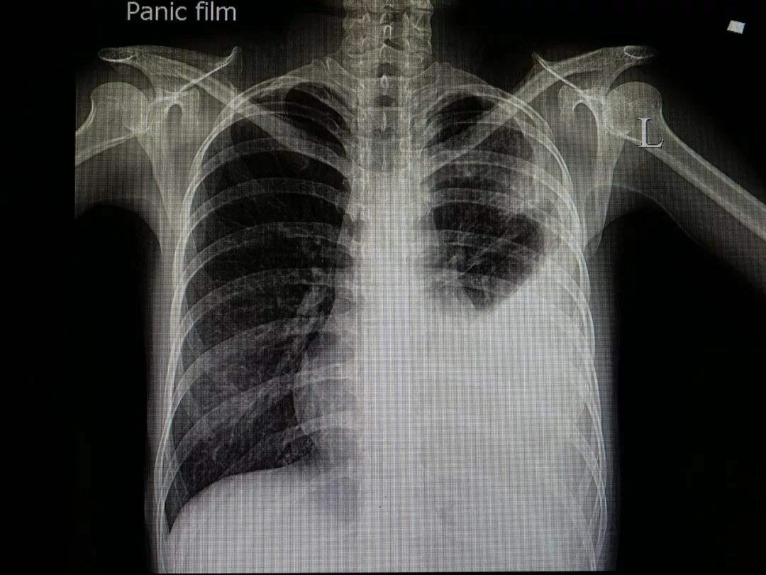 什么是胸腔积液?症状有什么?做什么检查可以查出?..