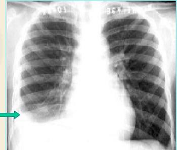 如何区分胸腔积液为渗出液或漏出液?