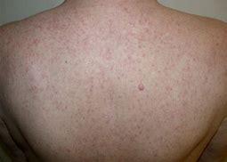 皮疹是靶向治疗疗效预测因子吗?