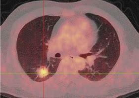 肺结节的恶性概率计算器