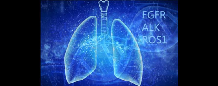 肺腺癌的发生发展(4):非典型增生、原位腺癌和浸润性腺癌的驱动性突变..