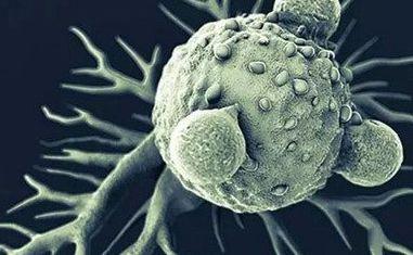 为什么肿瘤细胞会耐药?