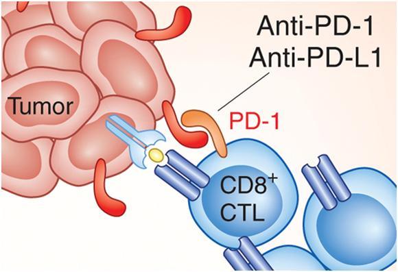 国内首个PD-L1上市,为 Ⅲ 期非小细胞肺癌患者带来福音!..