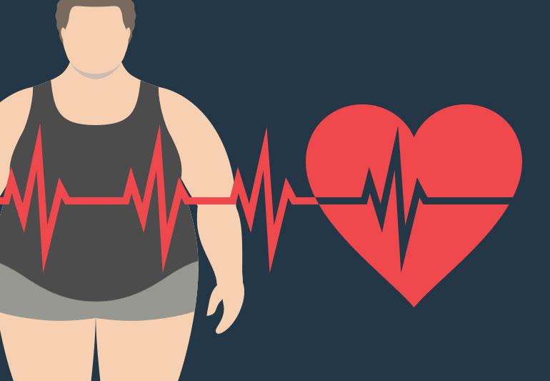 关爱肥胖患者