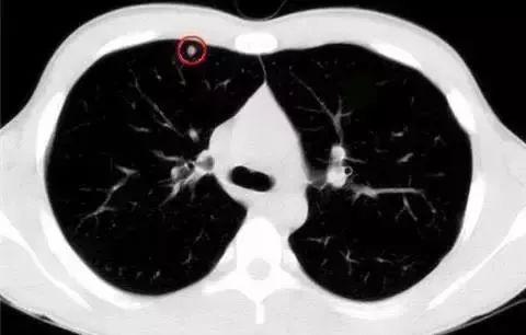 发现肺结节,生活中需要注意什么?