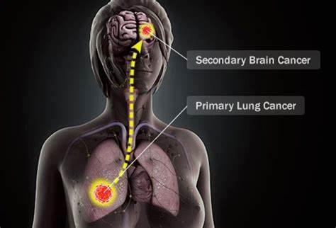 当肺癌发生脑转移……