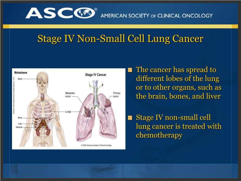 得了IV期非小细胞肺癌,该如何做?