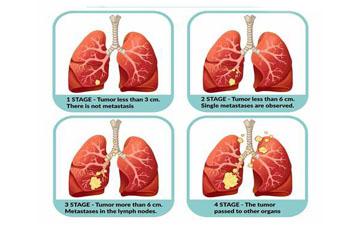 肺癌分期的意义