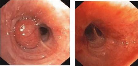 支气管类癌