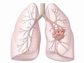 肺功能和肺部手术方式和切除范围