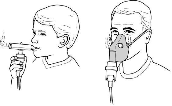 如何正确使用雾化器治疗?