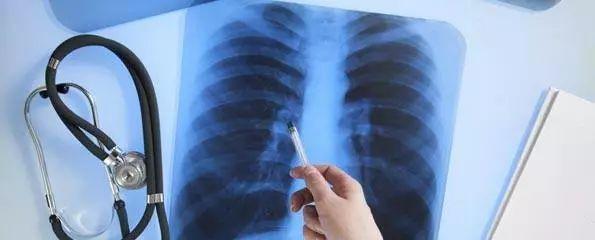 肺癌的患者日常饮食该怎么吃?