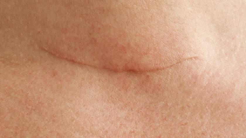 如何预防或尽量减少手术瘢痕?
