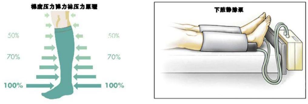 静脉血栓栓塞症(VTE)的预防