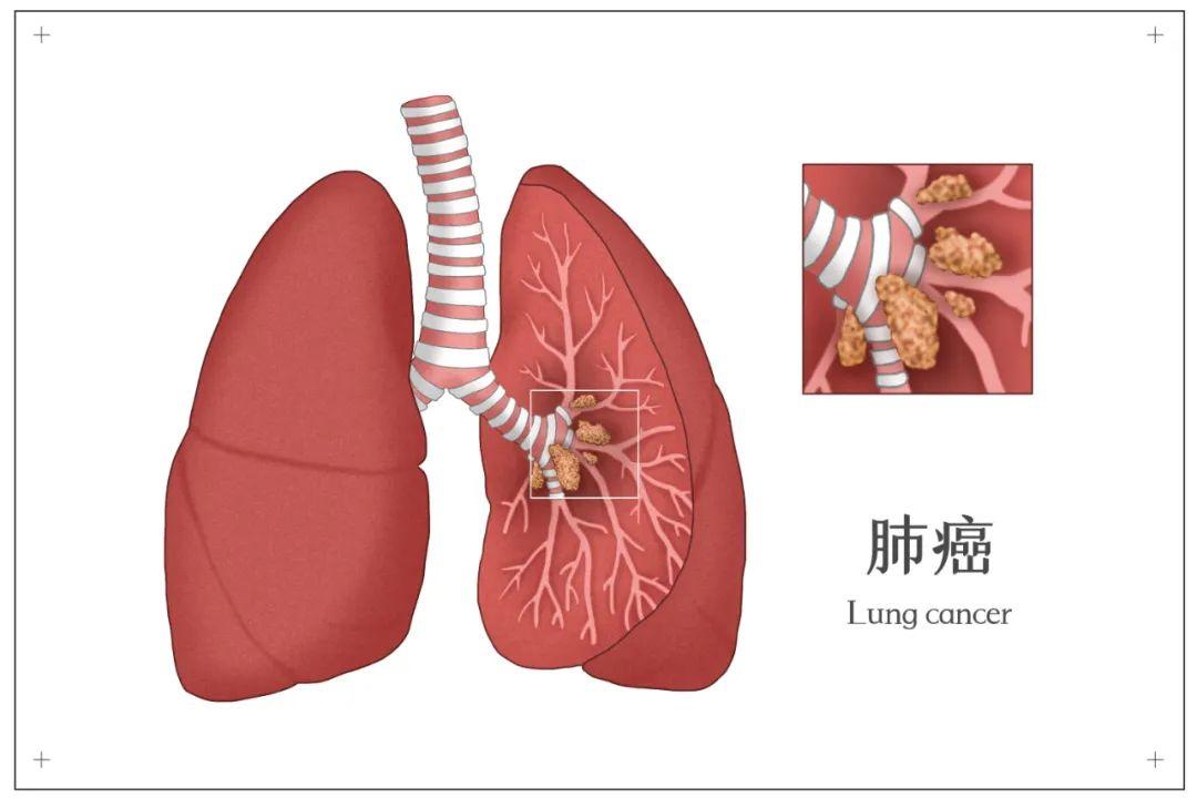 肺癌到底是什么?